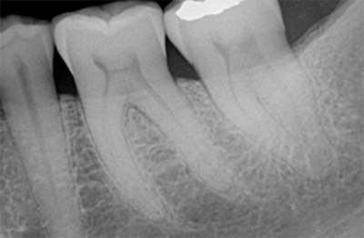 The rationale for the suggested use of fiber post segments in composite core buildups for endodontically treated teeth