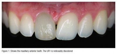 Nonsurgical retreatment of a central incisor following dental trauma