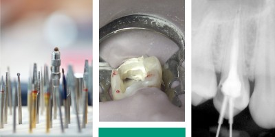 The latest in endodontic research