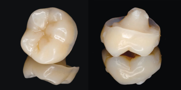 Reconstruction of a tooth with composite endocrown following root canal treatment