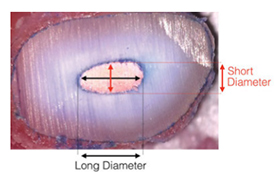 Figure 1: Long oval canals were identified in 25% of teeth examined. In fact, all canals examined were longer in the buccolingual dimension than the mesiodistal dimension