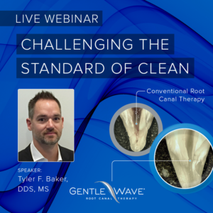 Free Webinar: Challenging The Standard of Clean in Root Canal Therapy