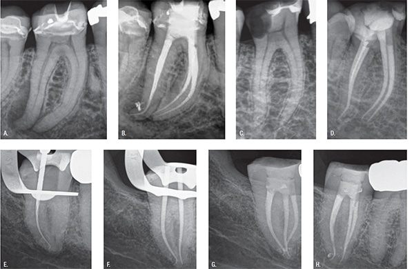 """Figure 2: From Fear to Fun. 2A-2B. Pretreatment and posttreatment of shaped canal in my ProTaper Universal (PTU) era. Note that a PTU F1 was never """"followed"""" to length due to my fear of file breakage. I only shaped apically with S1 and then S2. 2C-2D. Treatment result from my PTG era. PTG F1 was confidently """"followed"""" to length in each of the four molar canals, followed by conefit, and then easy obturation. The fear of breakage and the energy used up by that fear never did not cross my mind nor does it ever anymore. The PTG Finishers have clinically proven to me that they are reliable and safe. They easily and predictably crawl along smooth dentin walls with the greatest of ease. 2E. Abrupt apical distal hook of mandibular second molar followed by PTG S1. Preservation of portal of exit (POE) in a severe apical curve is one of endodontic's biggest technical challenges. 2F. Distal conefit follows shaped F1 apical curve. 2G-2H. Oblique and perpendicular posttreatment images further validating no internal or external transportation of root canal system including last two millimeters of the distal canal"""