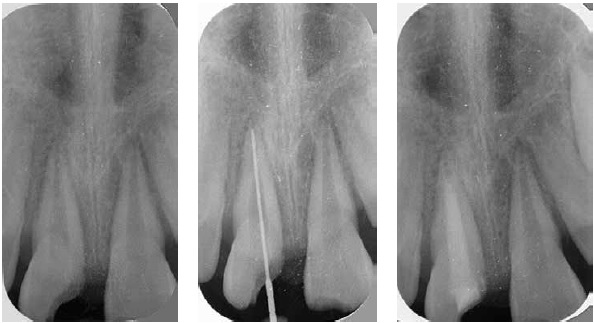 (L to r) Figure 6: Radiolucency associated with tooth No. 9 in conjunction with a positive pulp test Figure 7: A LightSpeed instrument is used to determine working length Figure 8: Inter-appointment dressing of calcium hydroxide and a temporary restoration