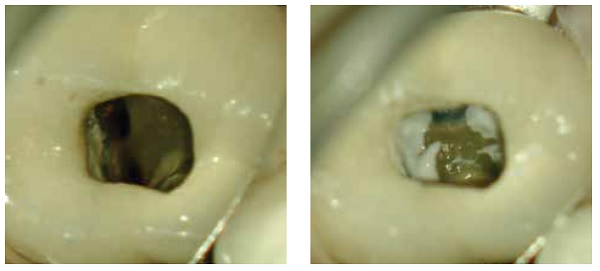 Figure 7: 2-4-2013 — Canal cleaning and shaping. Figure 8: 2-4-2013 — Calcium hydroxide (clinical)