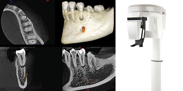 New updates to CS 8100 3D help endodontists practice at the highest level