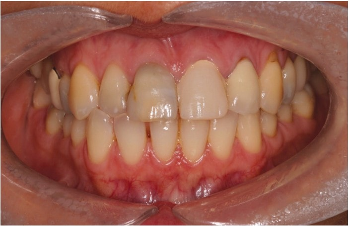 Figure 1: Appearance of anterior teeth on first visit to surgery