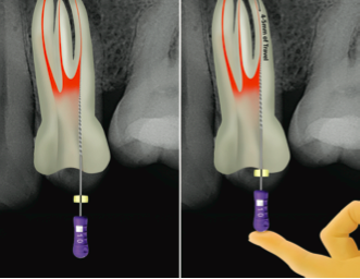 Clinical guidelines for the use of ProTaper Next™ instruments: part one
